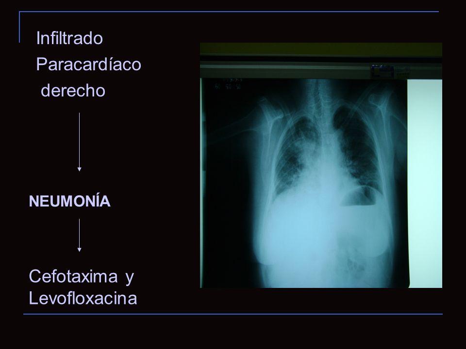 Infiltrado Paracardíaco derecho NEUMONÍA Cefotaxima y Levofloxacina