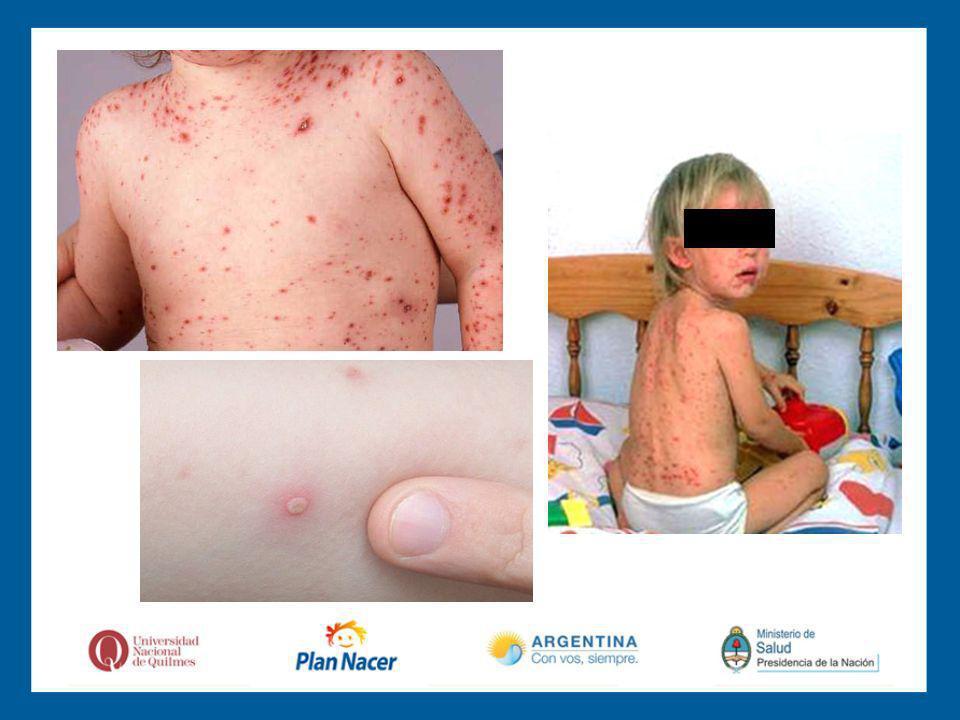 Complicaciones: Forma severa en inmunocomprometidos.