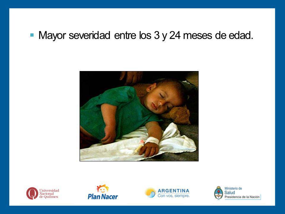 Mayor severidad entre los 3 y 24 meses de edad.