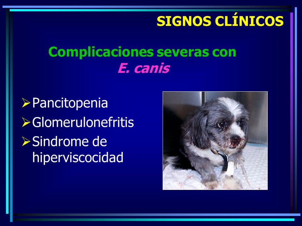 Pancitopenia Glomerulonefritis Sindrome de hiperviscocidad SIGNOS CLÍNICOS Complicaciones severas con E. canis