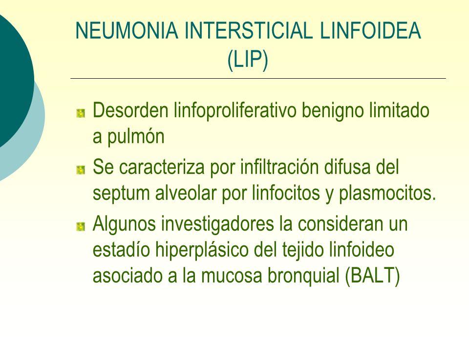 NEUMONIA INTERSTICIAL LINFOIDEA (LIP) Desorden linfoproliferativo benigno limitado a pulmón Se caracteriza por infiltración difusa del septum alveolar