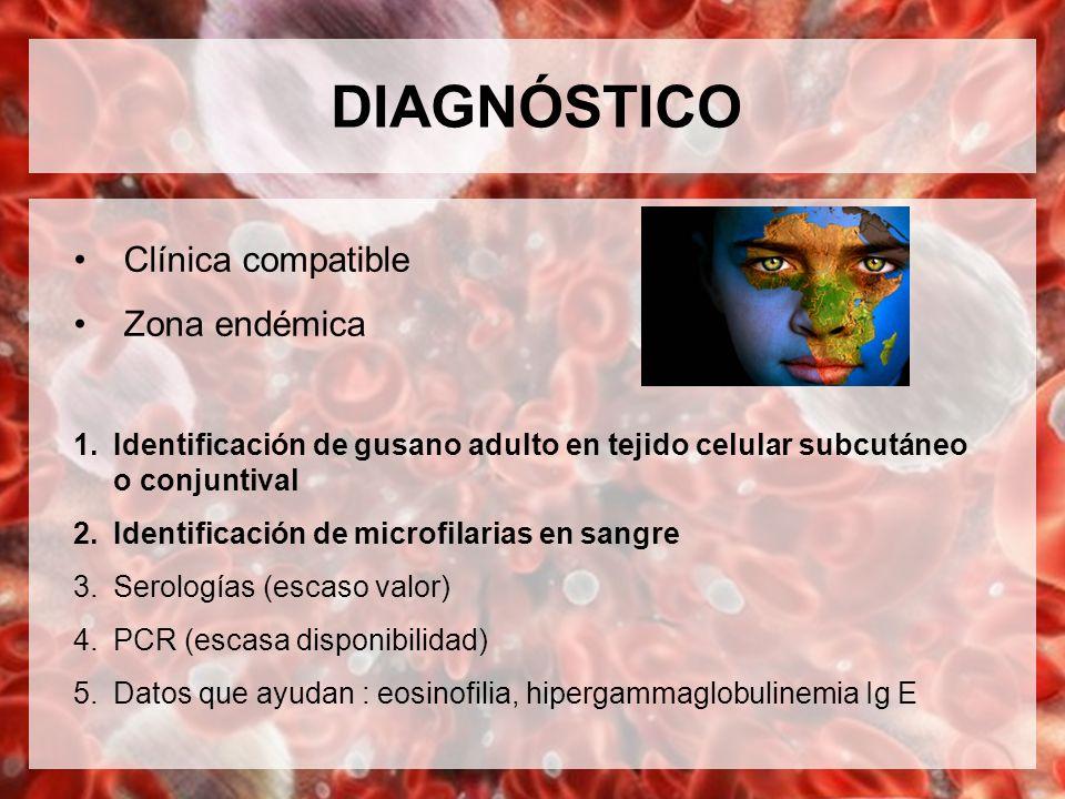 DIAGNÓSTICO Clínica compatible Zona endémica 1.Identificación de gusano adulto en tejido celular subcutáneo o conjuntival 2.Identificación de microfil