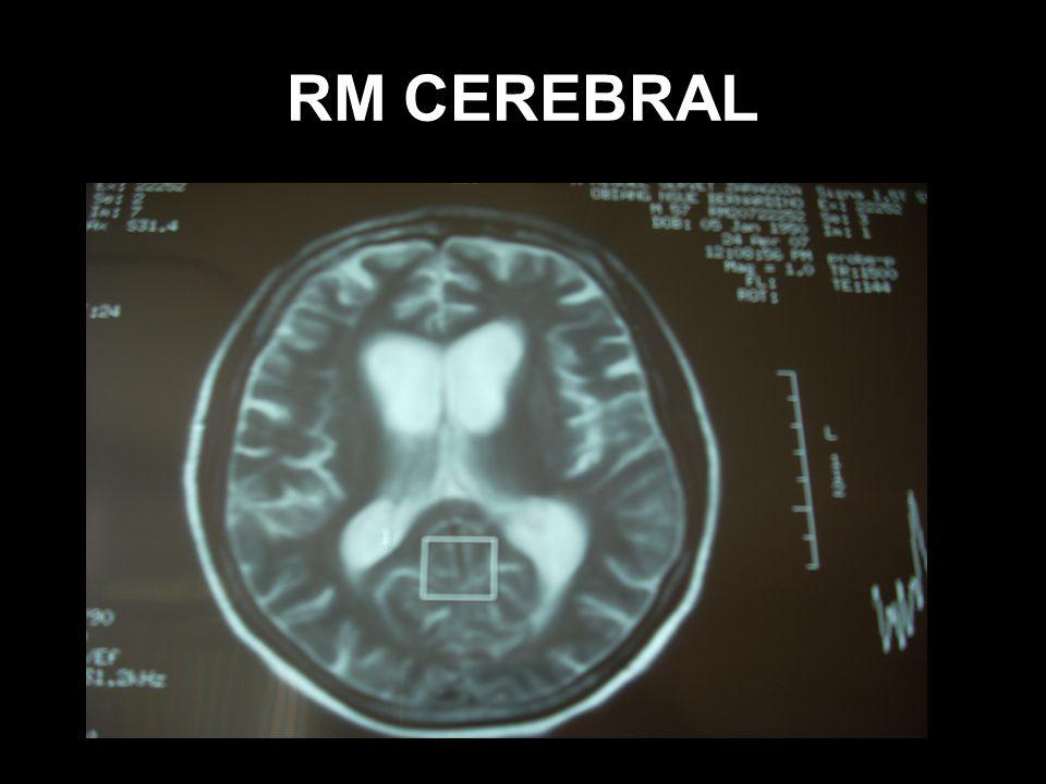 RM CEREBRAL