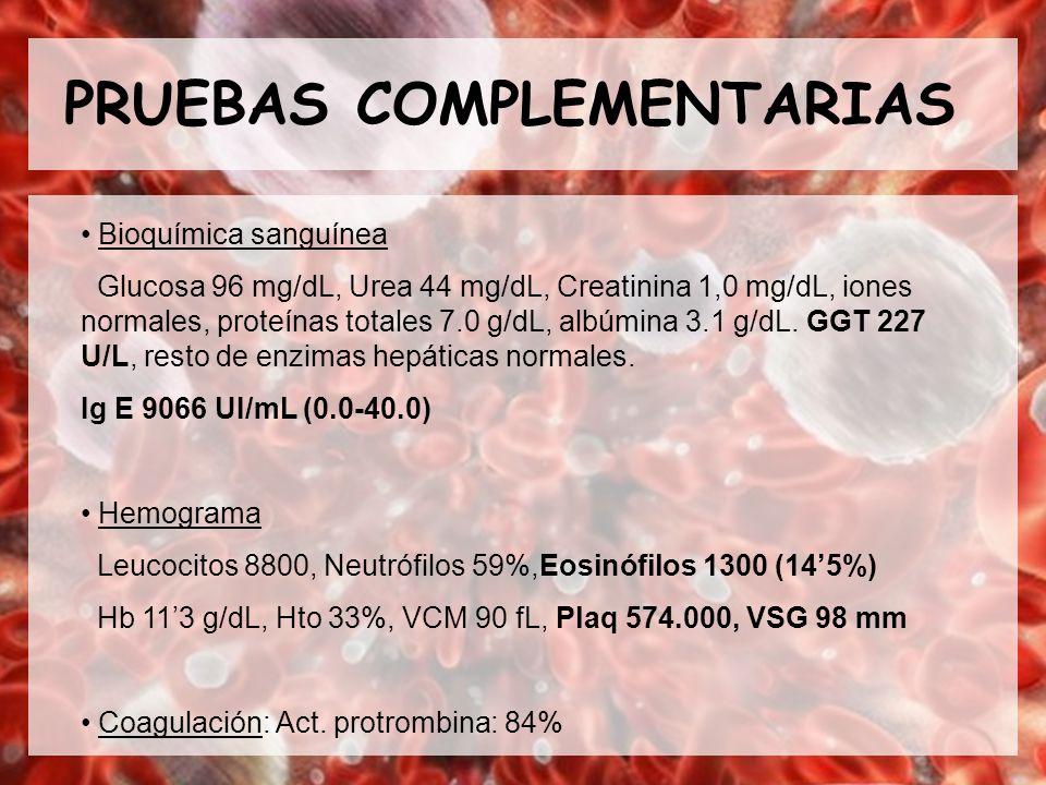 PRUEBAS COMPLEMENTARIAS Bioquímica sanguínea Glucosa 96 mg/dL, Urea 44 mg/dL, Creatinina 1,0 mg/dL, iones normales, proteínas totales 7.0 g/dL, albúmi