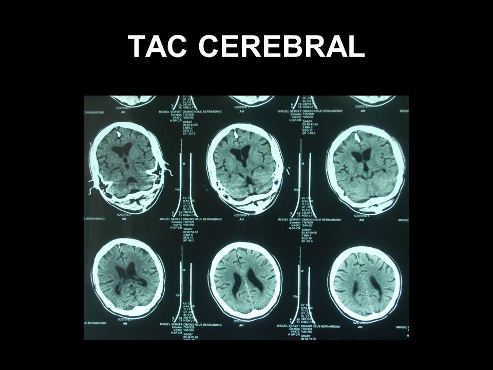 Manifestaciones clínicas Asintomático lo más frecuente Alteraciones oculares Surco de Calabar