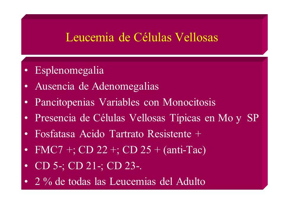 Leucemia de Células Vellosas Esplenomegalia Ausencia de Adenomegalias Pancitopenias Variables con Monocitosis Presencia de Células Vellosas Típicas en Mo y SP Fosfatasa Acido Tartrato Resistente + FMC7 +; CD 22 +; CD 25 + (anti-Tac) CD 5-; CD 21-; CD 23-.