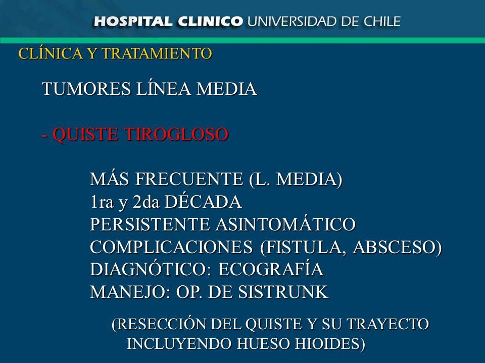 TUMORES LÍNEA MEDIA - QUISTE TIROGLOSO MÁS FRECUENTE (L. MEDIA) 1ra y 2da DÉCADA PERSISTENTE ASINTOMÁTICO COMPLICACIONES (FISTULA, ABSCESO) DIAGNÓTICO