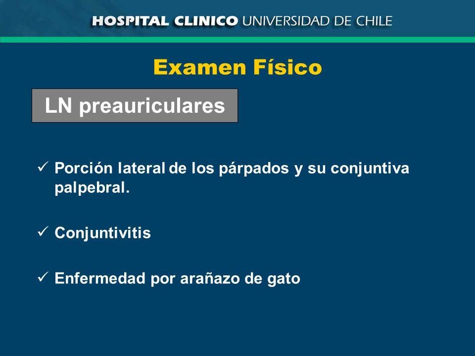 Examen Físico Porción lateral de los párpados y su conjuntiva palpebral. Conjuntivitis Enfermedad por arañazo de gato LN preauriculares