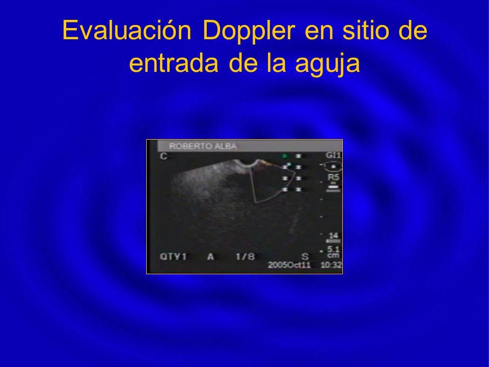 Evaluación Doppler en sitio de entrada de la aguja