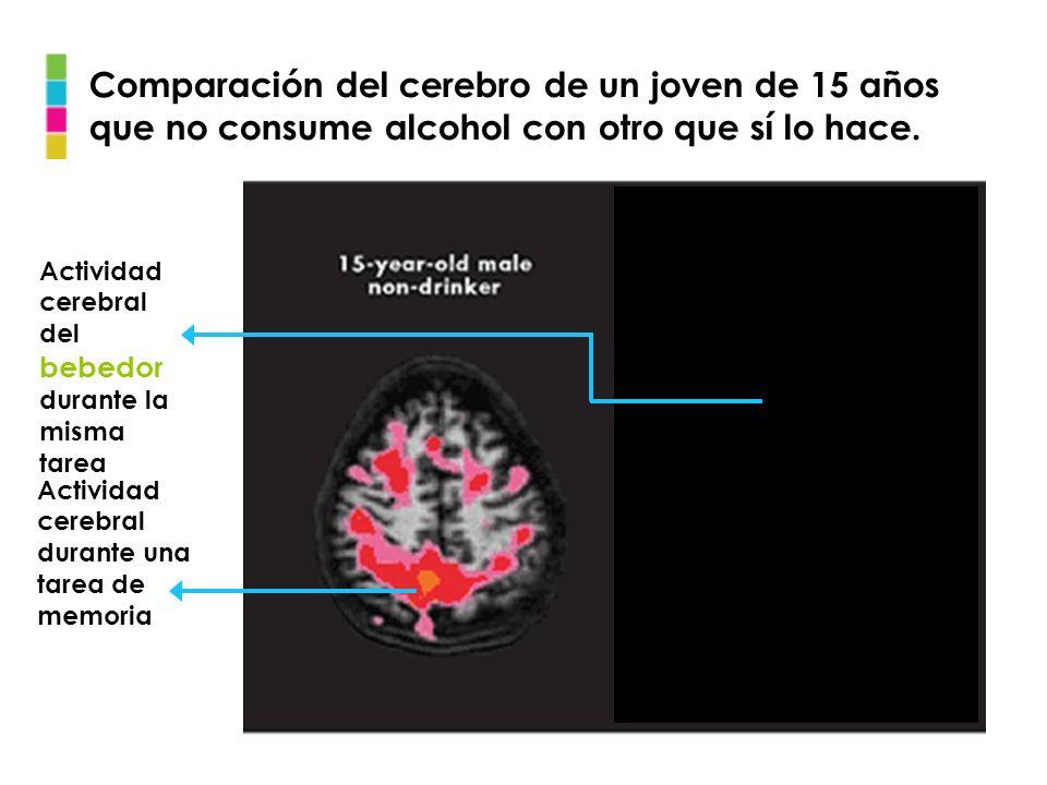 Comparación del cerebro de un joven de 15 años que no consume alcohol con otro que sí lo hace. Actividad cerebral durante una tarea de memoria Activid
