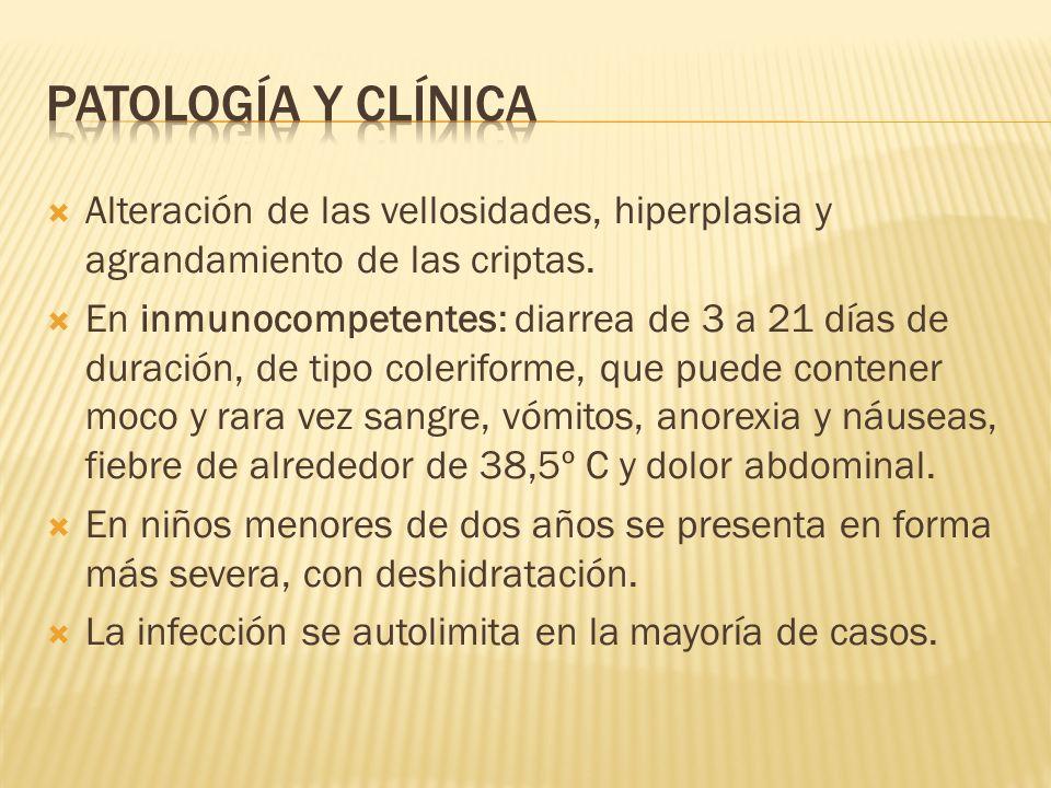 Alteración de las vellosidades, hiperplasia y agrandamiento de las criptas. En inmunocompetentes: diarrea de 3 a 21 días de duración, de tipo colerifo