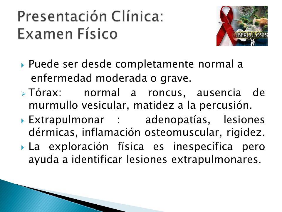 Puede ser desde completamente normal a enfermedad moderada o grave. Tórax: normal a roncus, ausencia de murmullo vesicular, matidez a la percusión. Ex