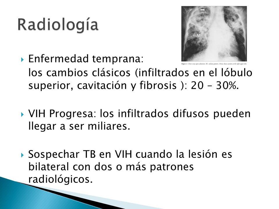 Enfermedad temprana: los cambios clásicos (infiltrados en el lóbulo superior, cavitación y fibrosis ): 20 – 30%. VIH Progresa: los infiltrados difusos