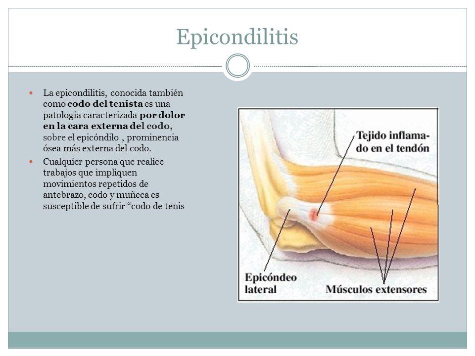 Epicondilitis La epicondilitis, conocida también como codo del tenista es una patología caracterizada por dolor en la cara externa del codo, sobre el