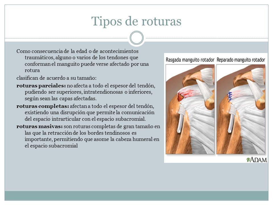 Tipos de roturas Como consecuencia de la edad o de acontecimientos traumáticos, alguno o varios de los tendones que conforman el manguito puede verse