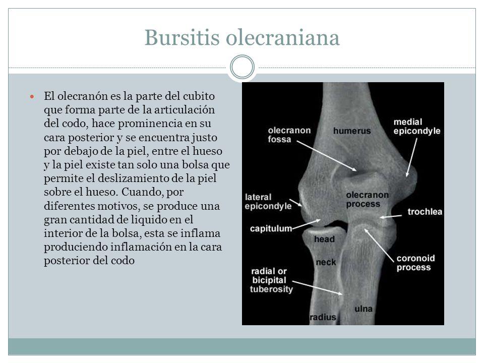 Bursitis olecraniana El olecranón es la parte del cubito que forma parte de la articulación del codo, hace prominencia en su cara posterior y se encue