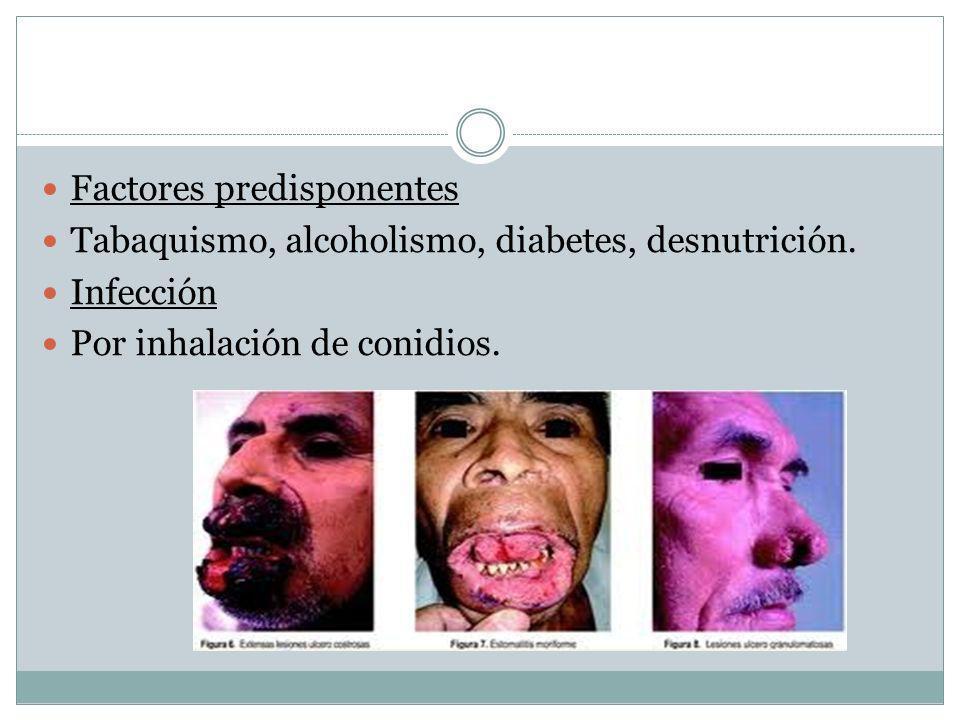 Factores predisponentes Tabaquismo, alcoholismo, diabetes, desnutrición. Infección Por inhalación de conidios.