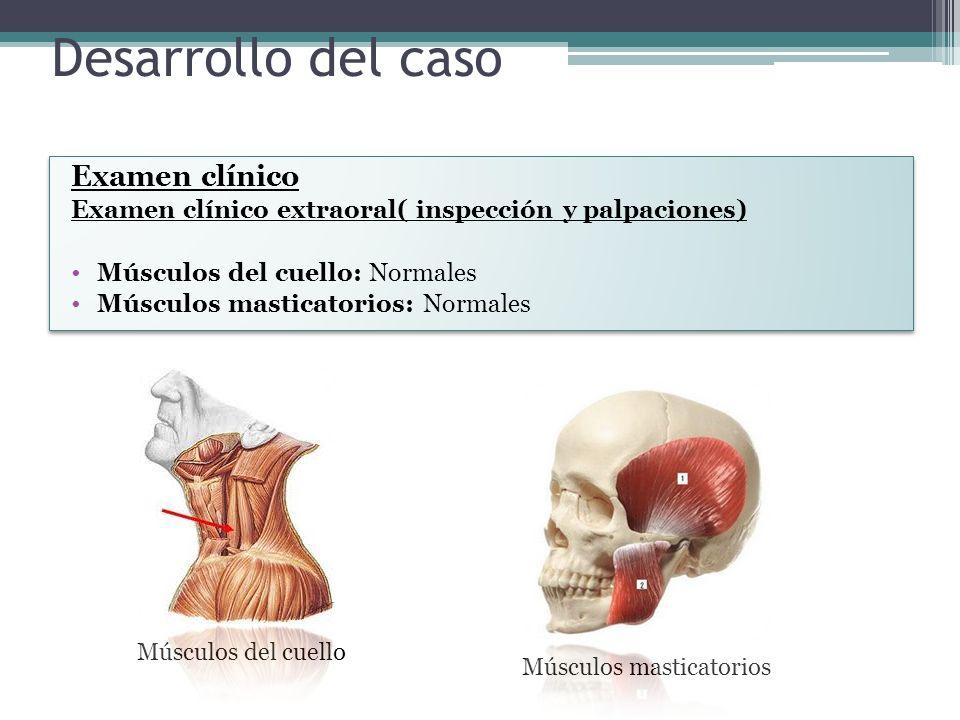 Desarrollo del caso Examen clínico Examen clínico extraoral( inspección y palpaciones) Músculos del cuello: Normales Músculos masticatorios: Normales Examen clínico Examen clínico extraoral( inspección y palpaciones) Músculos del cuello: Normales Músculos masticatorios: Normales Músculos del cuello Músculos masticatorios