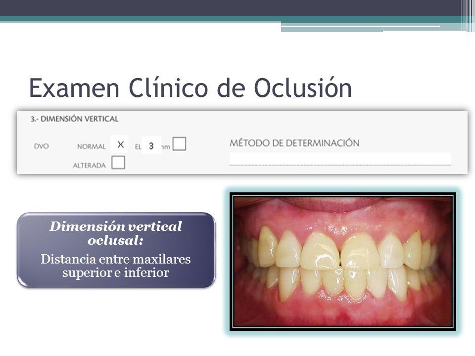 Examen Clínico de Oclusión Dimensión vertical oclusal: Distancia entre maxilares superior e inferior