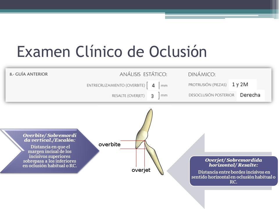Examen Clínico de Oclusión Overjet/ Sobremordida horizontal/ Resalte: Distancia entre bordes incisivos en sentido horizontal en oclusión habitual o RC.