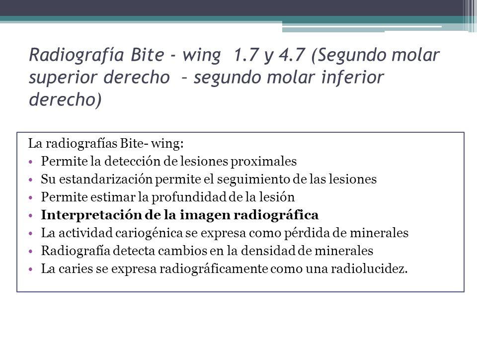 Radiografía Bite - wing 1.7 y 4.7 (Segundo molar superior derecho – segundo molar inferior derecho) La radiografías Bite- wing: Permite la detección d