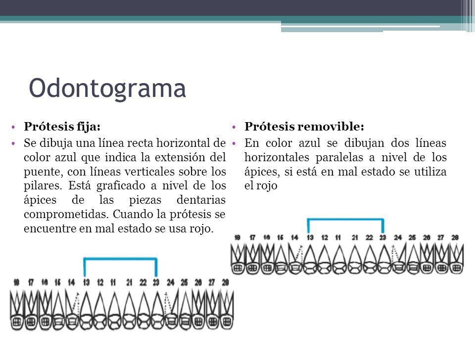 Odontograma Prótesis fija: Se dibuja una línea recta horizontal de color azul que indica la extensión del puente, con líneas verticales sobre los pilares.