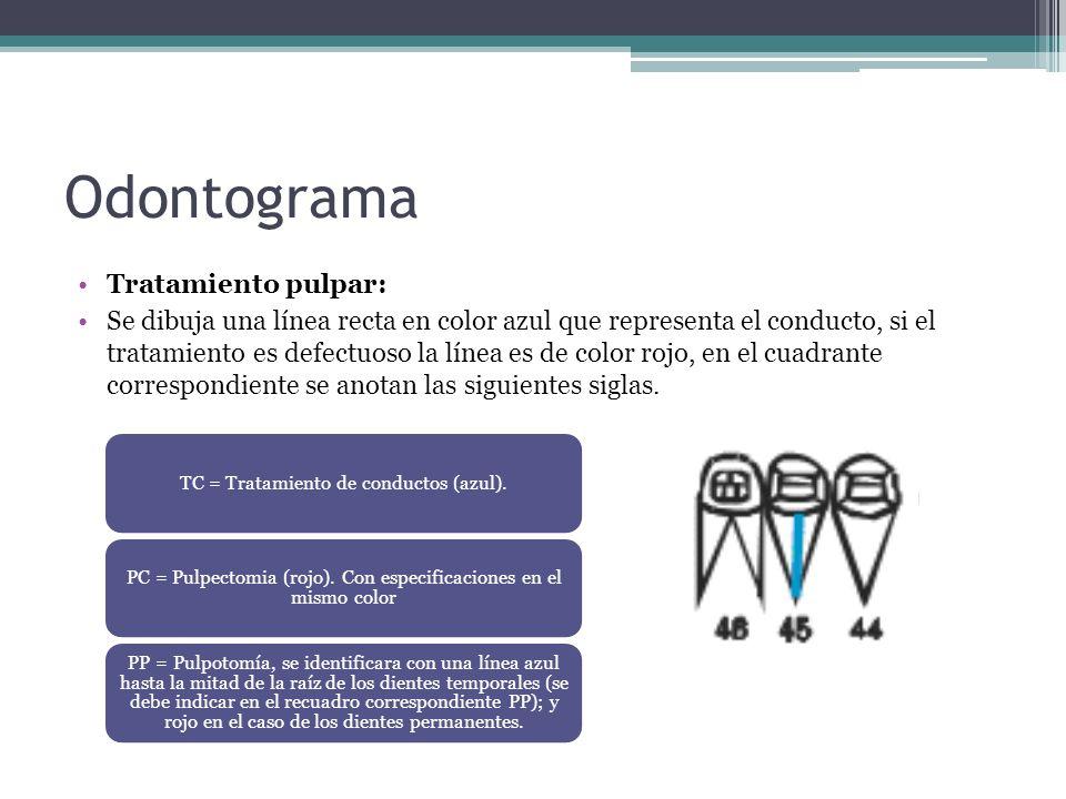 Odontograma Tratamiento pulpar: Se dibuja una línea recta en color azul que representa el conducto, si el tratamiento es defectuoso la línea es de col