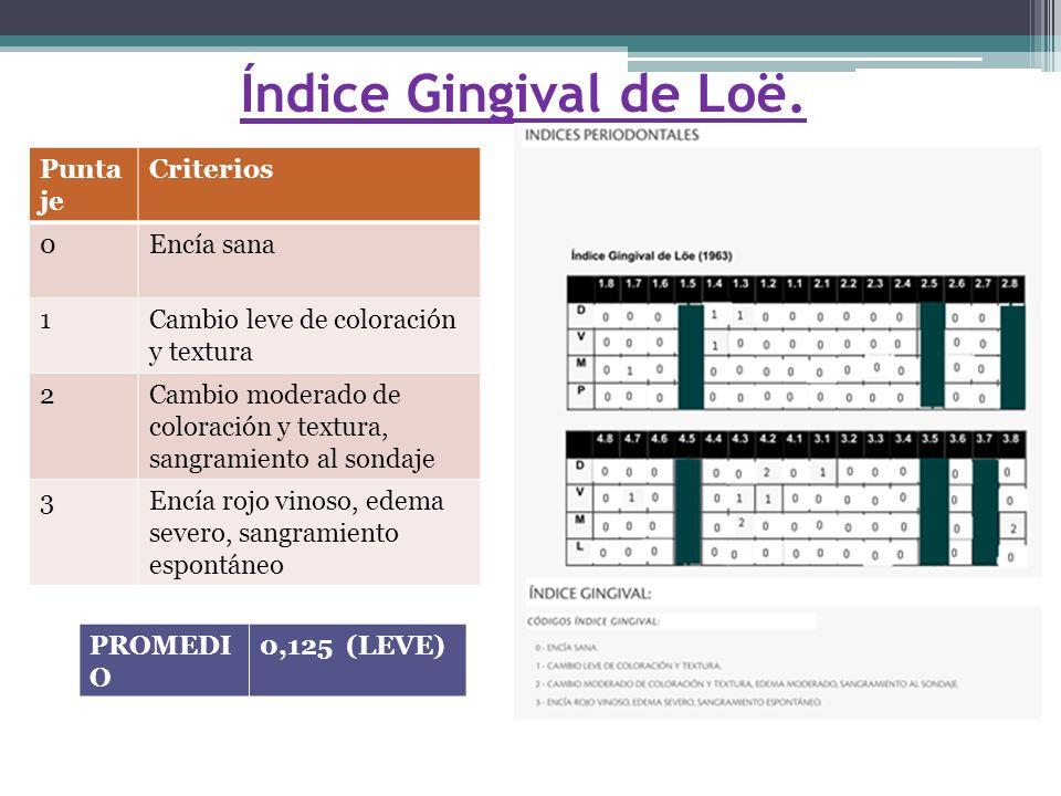Índice Gingival de Loë.