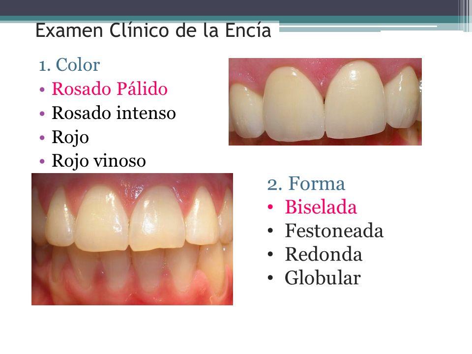1.Color Rosado Pálido Rosado intenso Rojo Rojo vinoso Examen Clínico de la Encía 2.