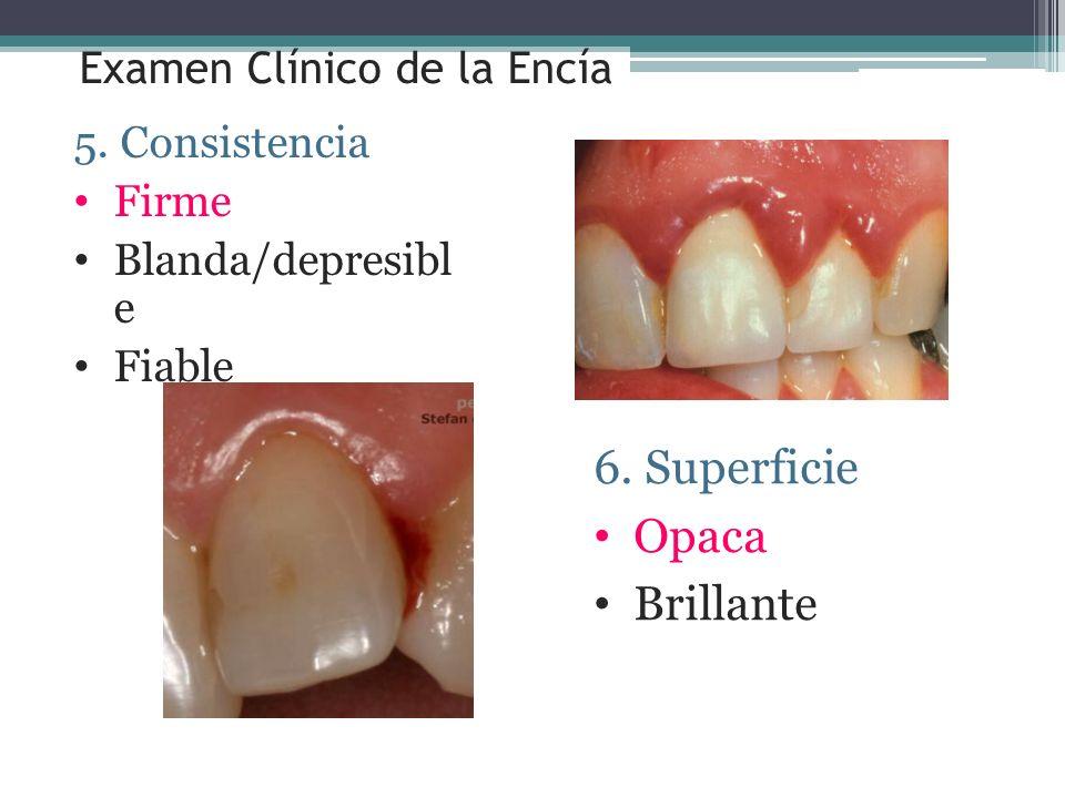 Examen Clínico de la Encía 5. Consistencia Firme Blanda/depresibl e Fiable 6. Superficie Opaca Brillante