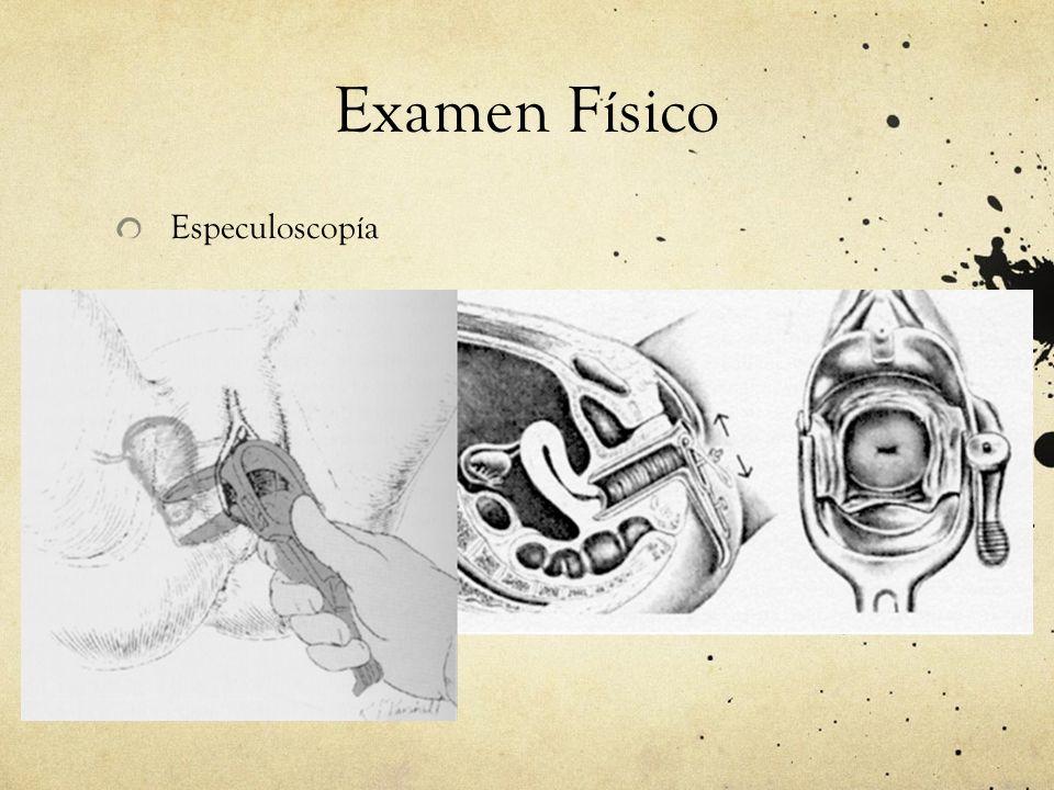Examen Físico Especuloscopía