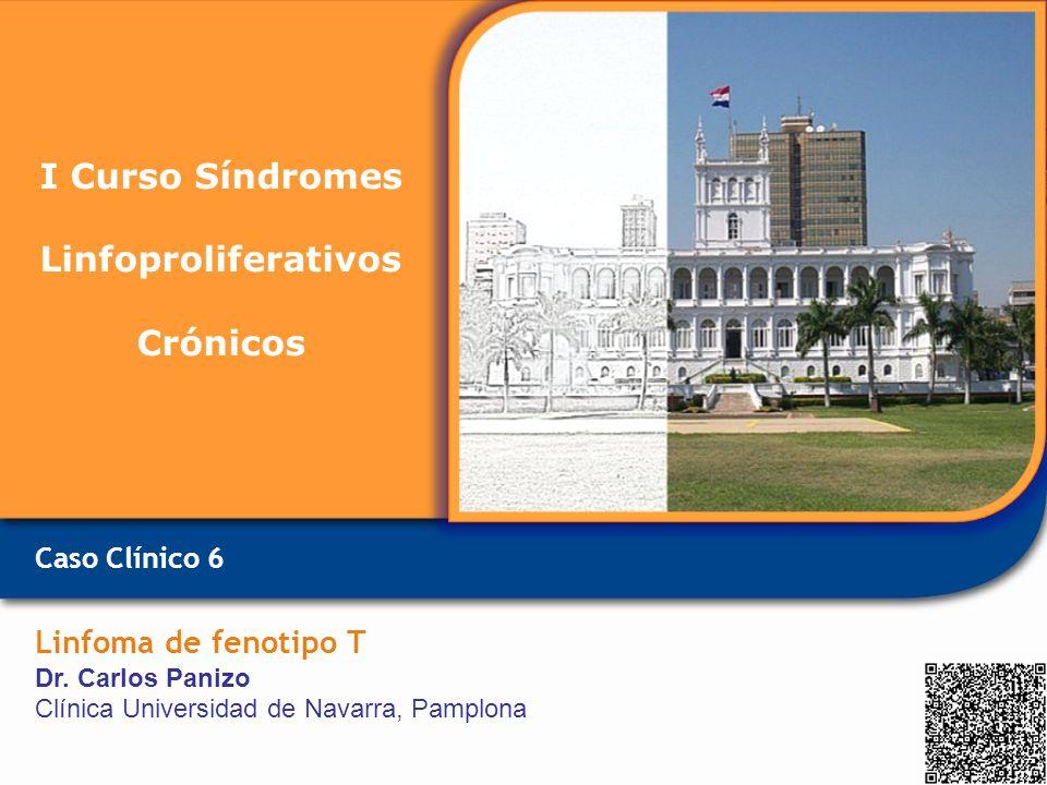 Caso Clínico 6 Linfoma de fenotipo T Dr. Carlos Panizo Clínica Universidad de Navarra, Pamplona I Curso Síndromes Linfoproliferativos Crónicos