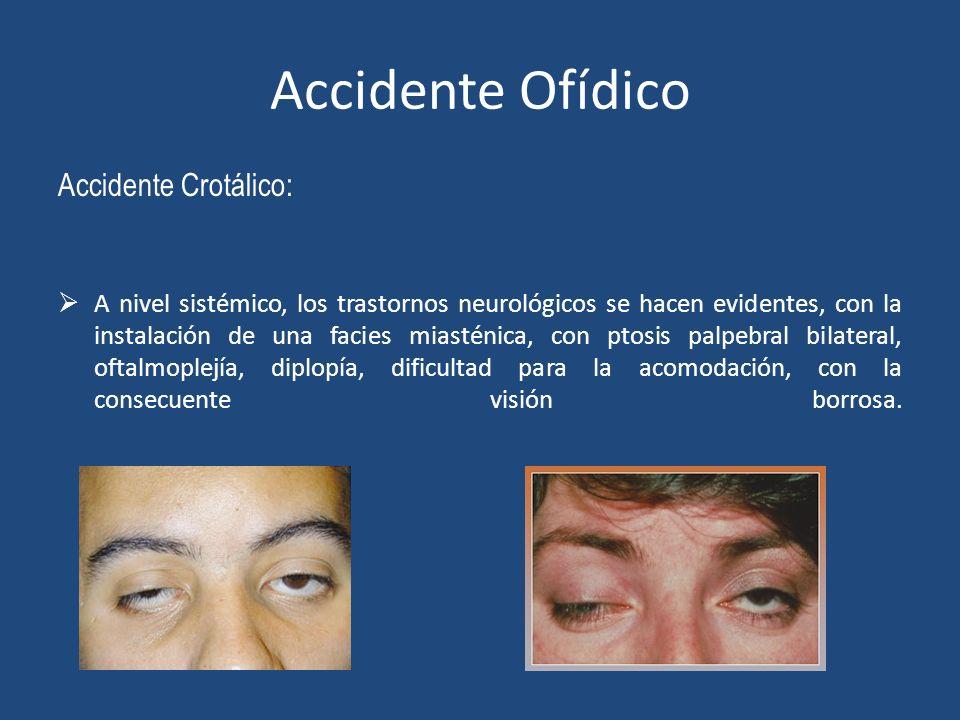 Accidente Ofídico Accidente Crotálico: A nivel sistémico, los trastornos neurológicos se hacen evidentes, con la instalación de una facies miasténica,
