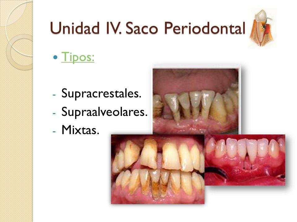 Tipos: - Supracrestales. - Supraalveolares. - Mixtas. Unidad IV. Saco Periodontal
