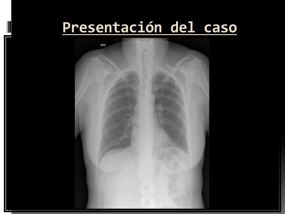 Presentación del caso Pruebas complementarias al ingreso Hemograma: plaquetas 76.000 con agregados plaquetarios muy abundantes Coagulación básica: nor