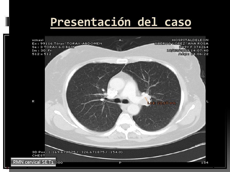Presentación del caso Evolutivo Se realizan las siguientes pruebas durante el ingreso de la paciente: Ac antitiroglobulina y antimicrosomales: normal