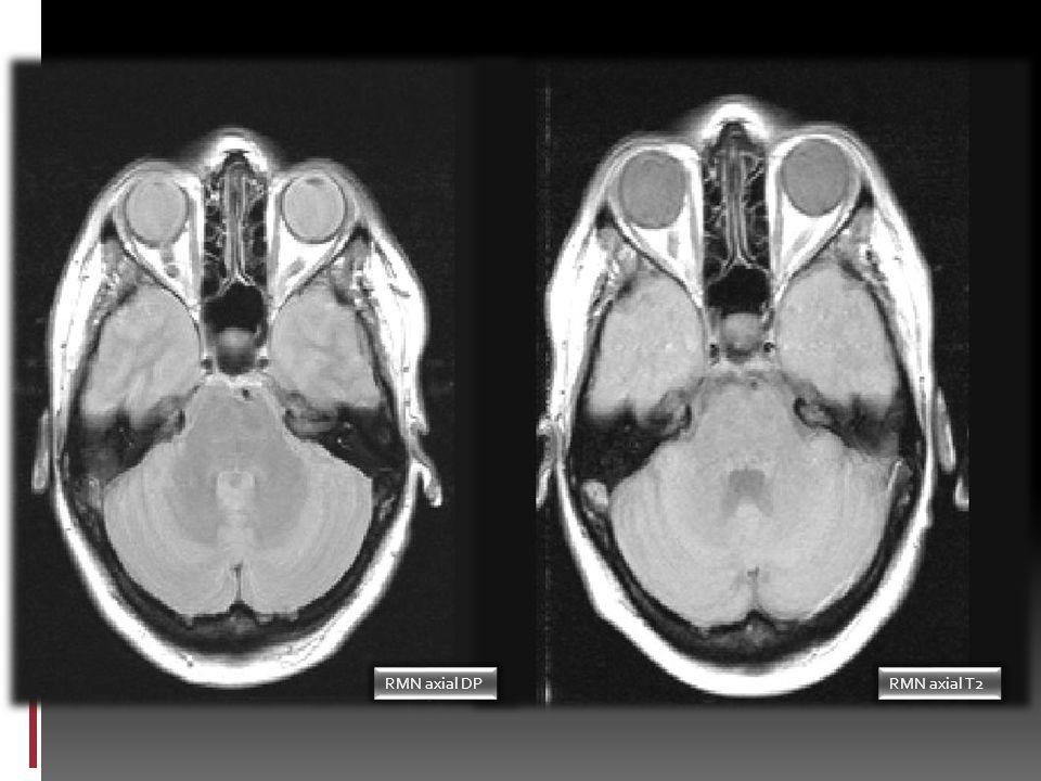 Consulta de Neurología Resultados de anticuerpos onconeuronales positivos para SOX-1 y canales Ca +2 P/Q voltaje- dependientes Se realiza EMG con esti