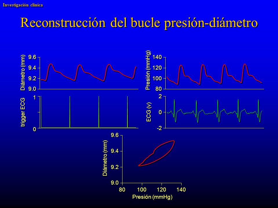trigger ECG ECG (v) Diámetro (mm) Presión (mmHg) 9.6 9.4 9.2 9.0 140 120 100 80 2 2 0 0 -2 1 1 0 0 Reconstrucción del bucle presión-diámetro Diámetro (mm) 9.6 9.4 9.2 9.0 Presión (mmHg) 140 120 100 80 Investigación clínica