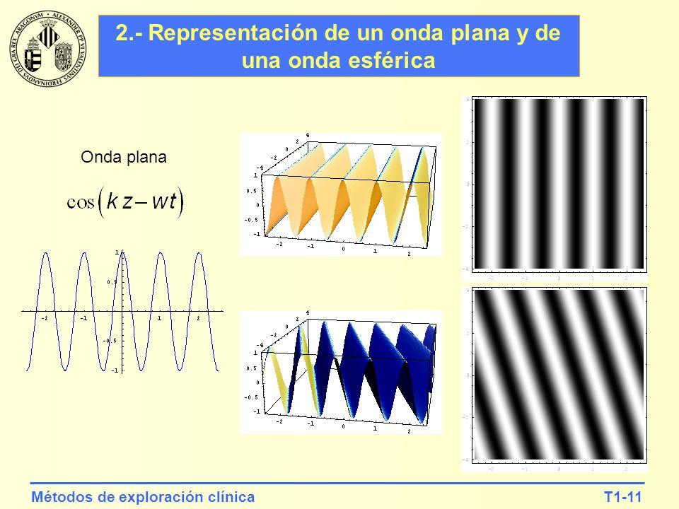 T1-11Métodos de exploración clínica 2.- Representación de un onda plana y de una onda esférica Onda plana