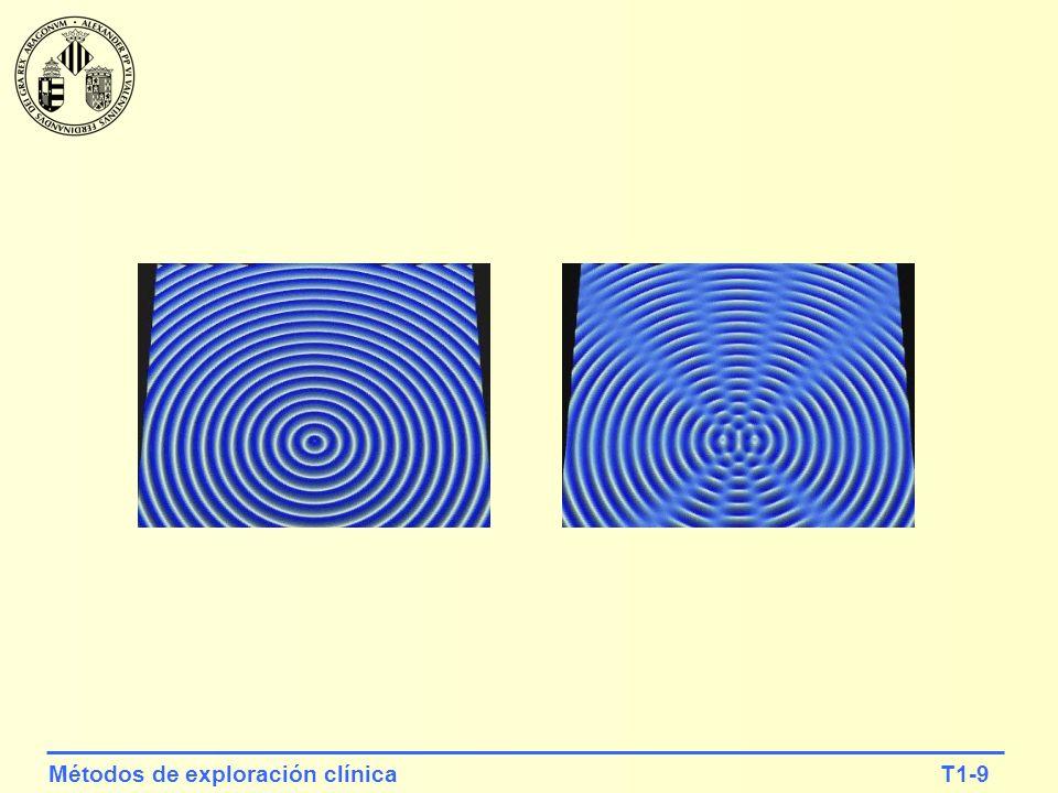 T1-10Métodos de exploración clínica 2.- Representación de un onda plana y de una onda esférica y0y0 yxyx