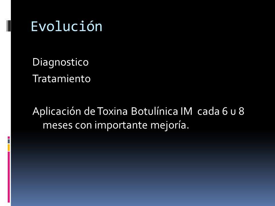 Evolución Diagnostico Tratamiento Aplicación de Toxina Botulínica IM cada 6 u 8 meses con importante mejoría.