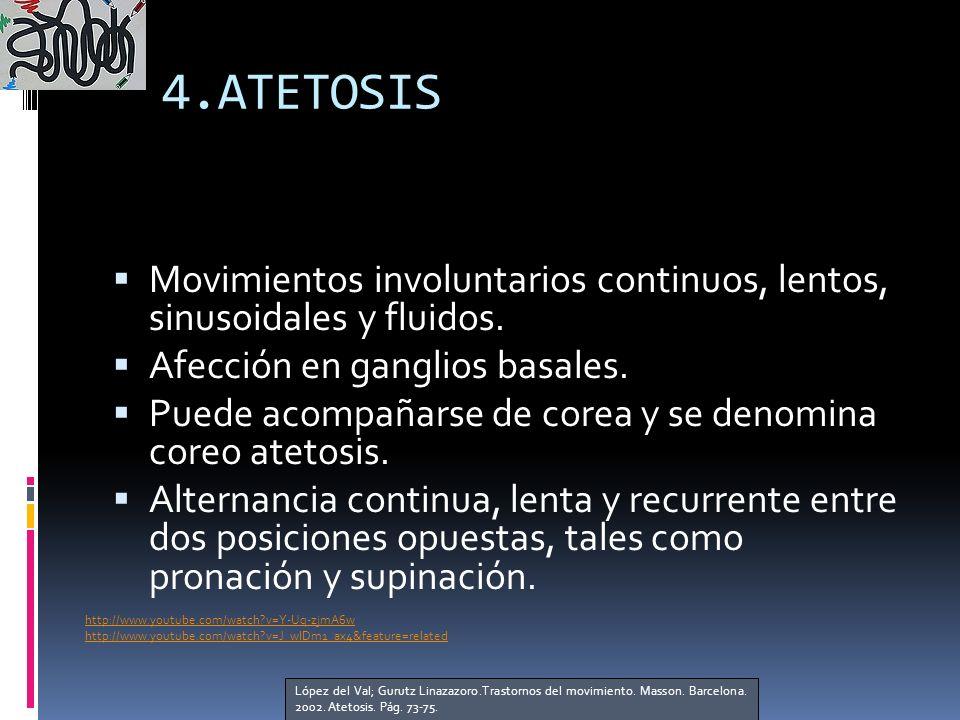 4.ATETOSIS Movimientos involuntarios continuos, lentos, sinusoidales y fluidos.