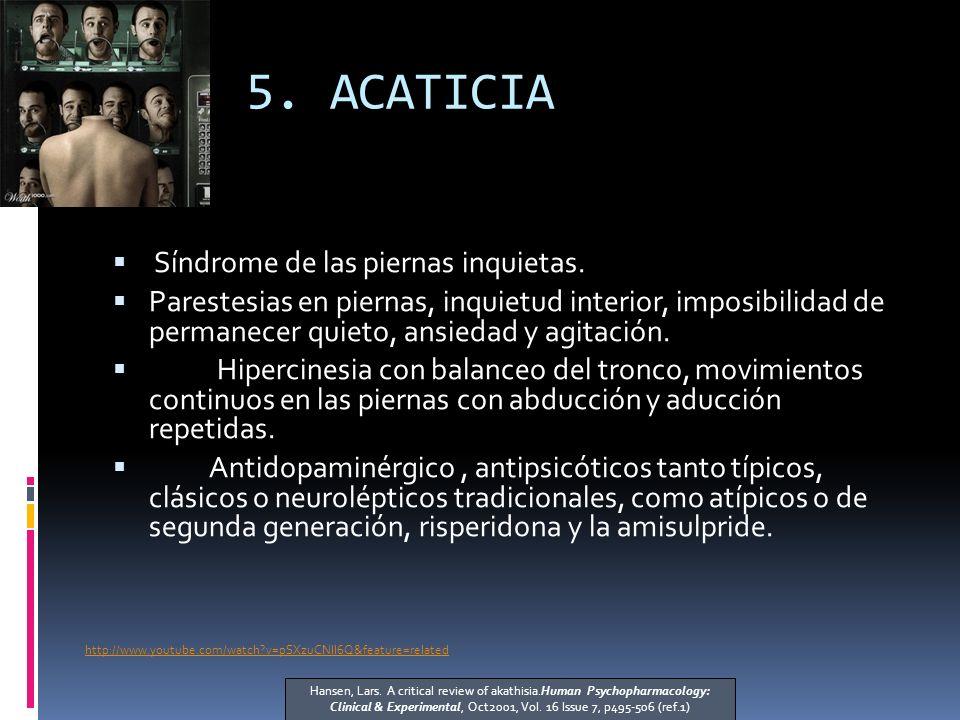 5.ACATICIA Síndrome de las piernas inquietas.