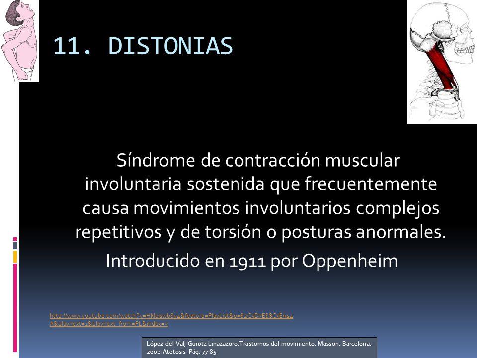 11. DISTONIAS Síndrome de contracción muscular involuntaria sostenida que frecuentemente causa movimientos involuntarios complejos repetitivos y de to
