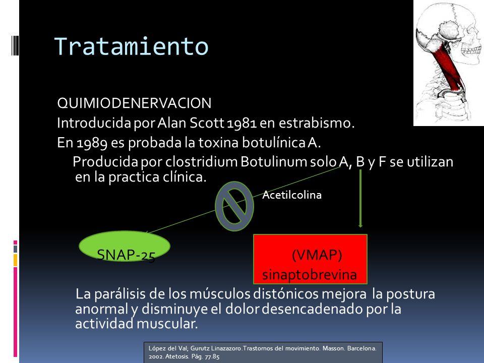 Tratamiento QUIMIODENERVACION Introducida por Alan Scott 1981 en estrabismo.
