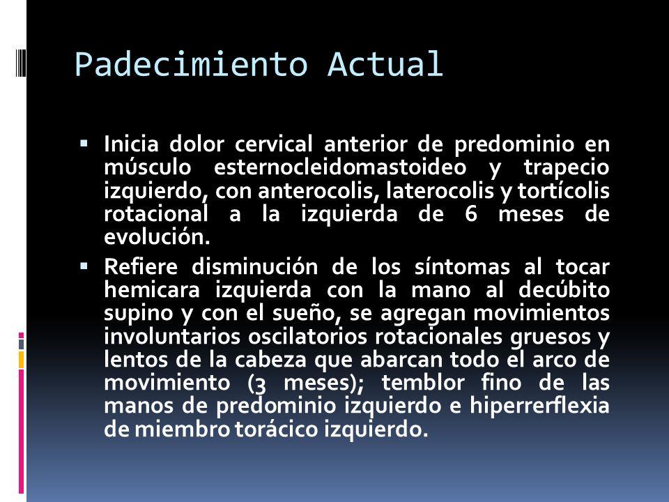 Padecimiento Actual Inicia dolor cervical anterior de predominio en músculo esternocleidomastoideo y trapecio izquierdo, con anterocolis, laterocolis y tortícolis rotacional a la izquierda de 6 meses de evolución.