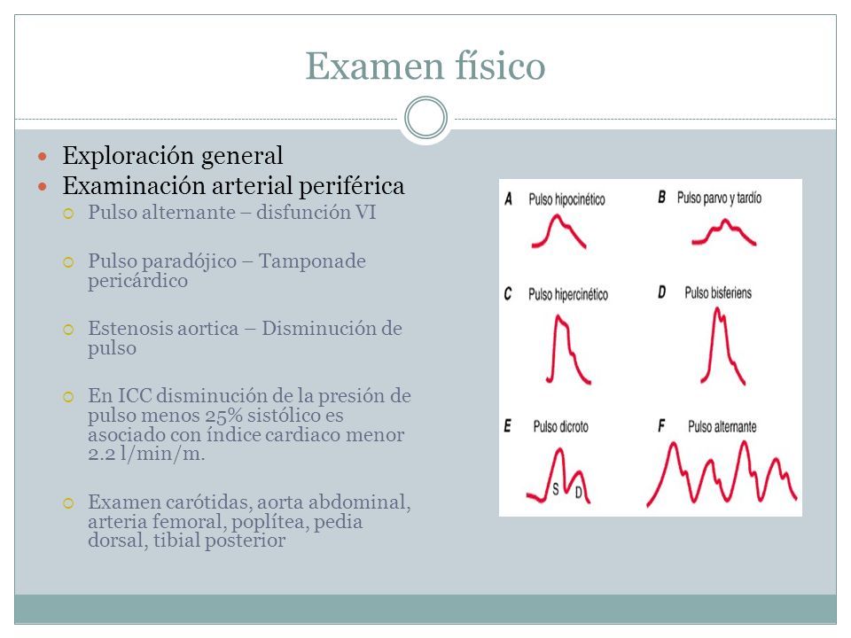 Examen físico Exploración general Examinación arterial periférica Pulso alternante – disfunción VI Pulso paradójico – Tamponade pericárdico Estenosis