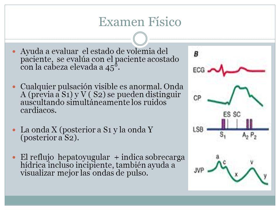 Examen Físico Ayuda a evaluar el estado de volemia del paciente, se evalúa con el paciente acostado con la cabeza elevada a 45°. Cualquier pulsación v