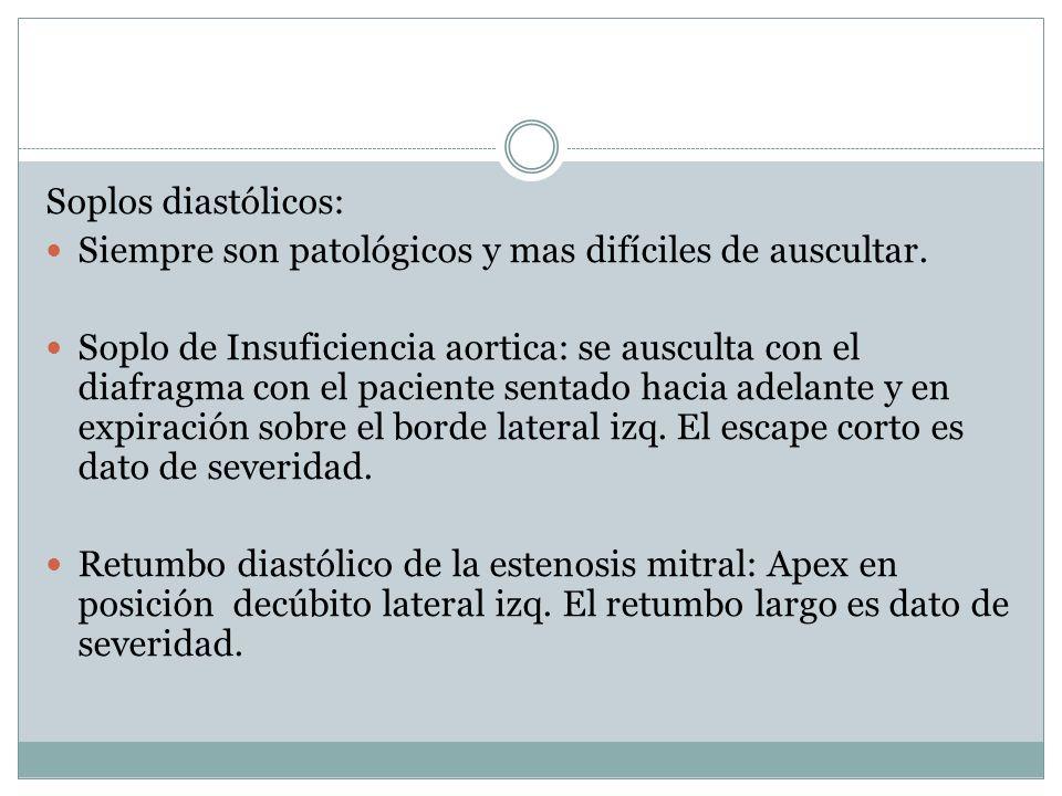 Soplos diastólicos: Siempre son patológicos y mas difíciles de auscultar. Soplo de Insuficiencia aortica: se ausculta con el diafragma con el paciente