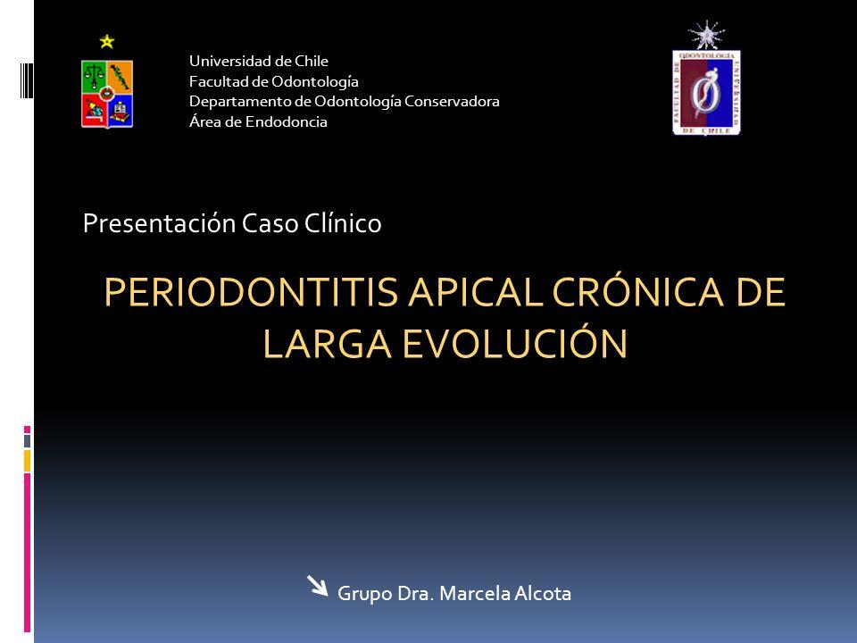 Universidad de Chile Facultad de Odontología Departamento de Odontología Conservadora Área de Endodoncia Presentación Caso Clínico PERIODONTITIS APICA